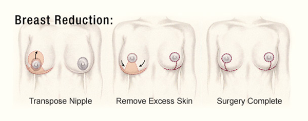 Breast-Reduction-Diagram