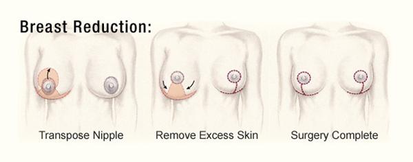 Breast-Reduction-Diagram