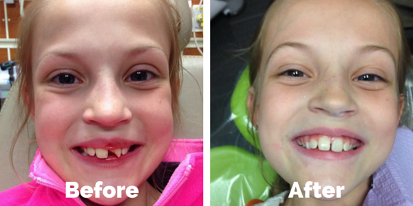 pediatric tooth trauma fracture - before and after restoration