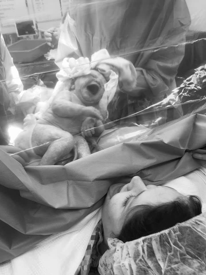 Mother having a Cesarean and newborn baby is held up to see-through curtain